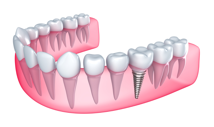 A dental implant in a 3d rendering