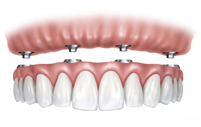 Illustration of All On 4 Dental Implants