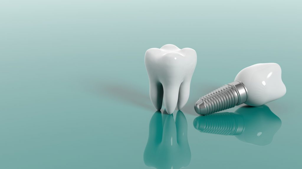 close-up view of dental implant teeth on a table