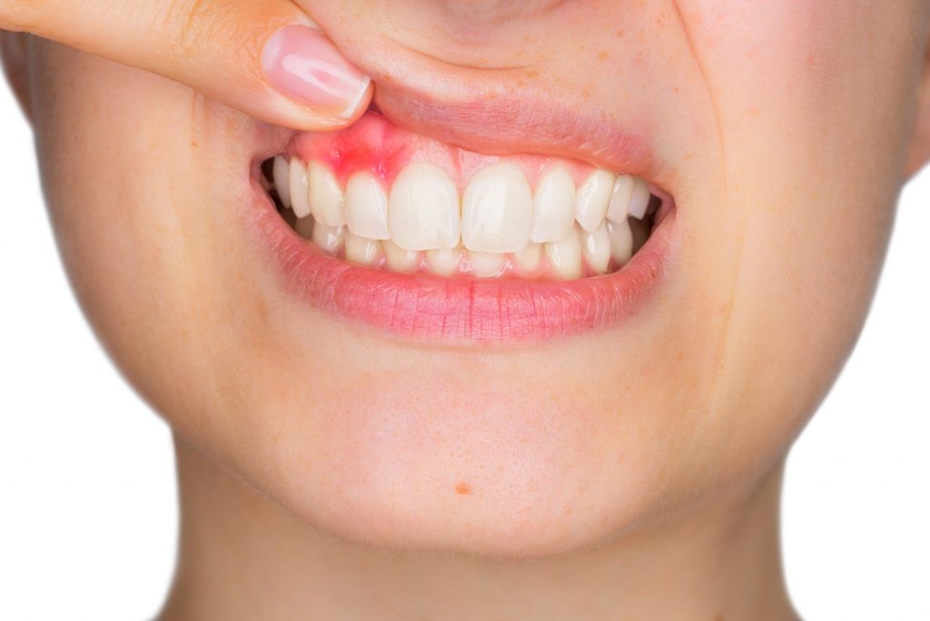 Periodontist treating a young women in Phoenix AZ