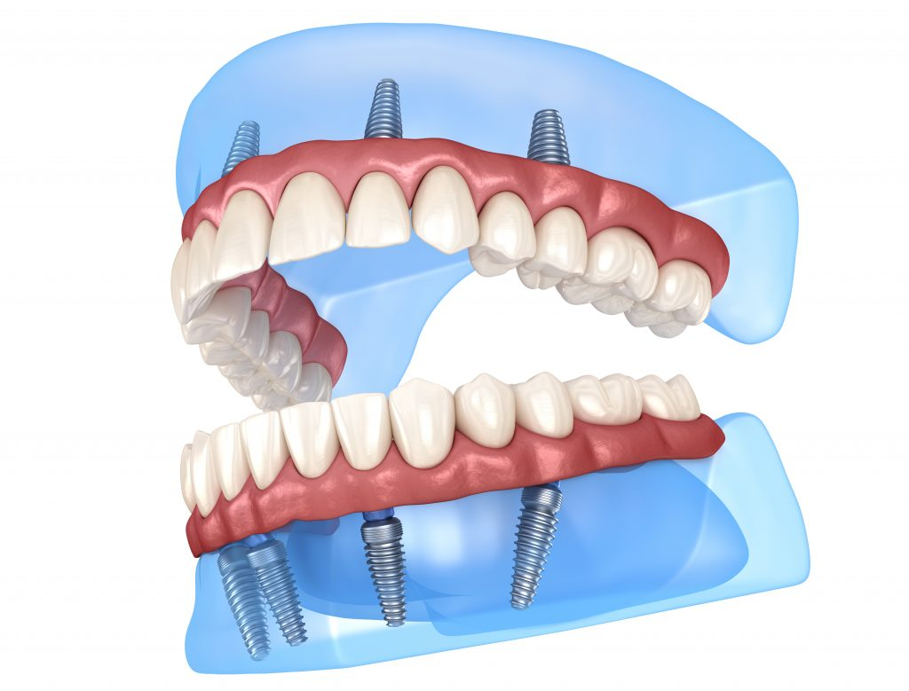 All-On-4 teeth in a day dental implants 3D rendering.