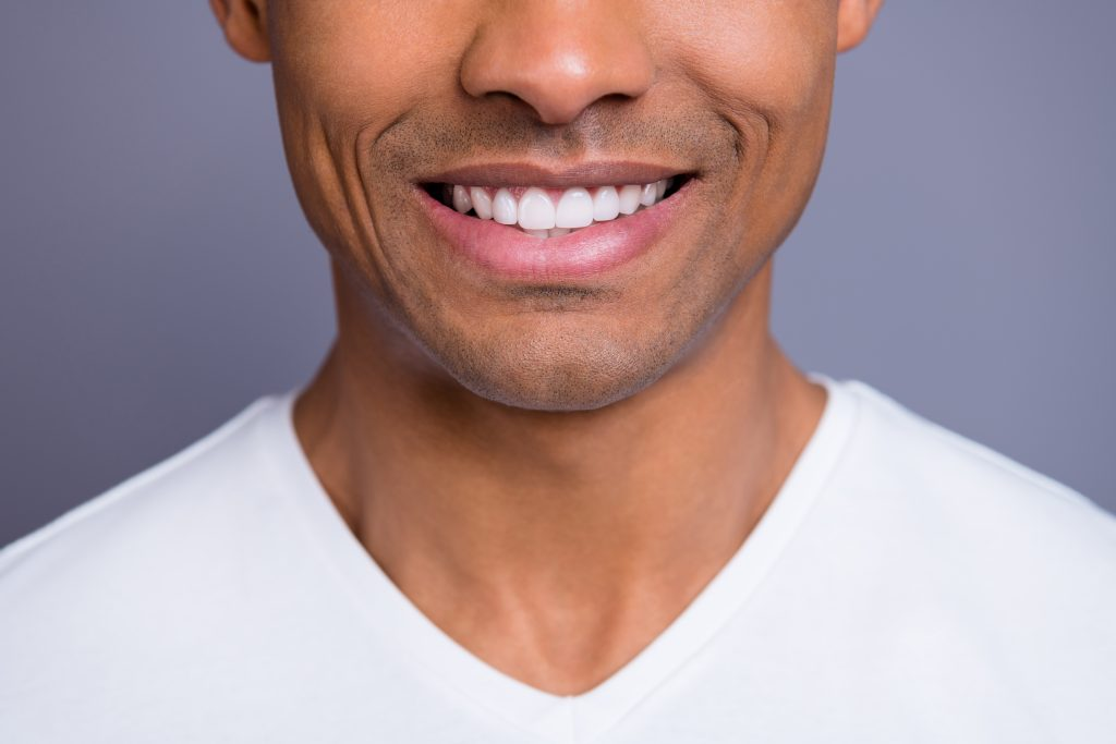 Man without periodontal disease smiling with white teeth.