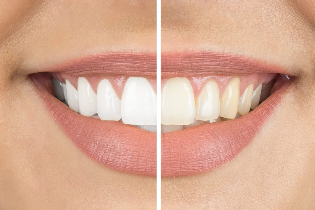 Cosmetic Teeth whitening before and after