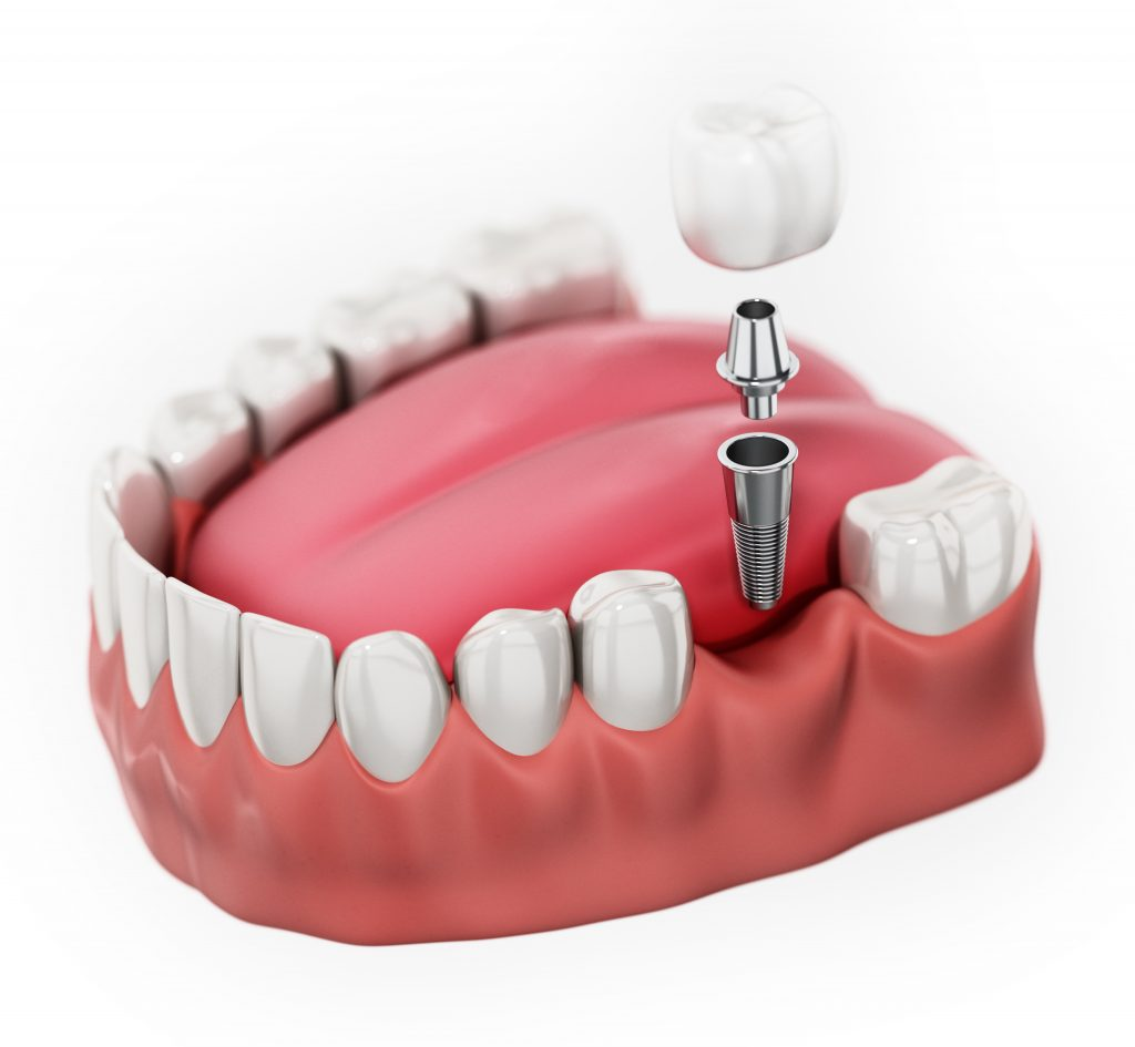 3D rendering of a single tooth dental implant