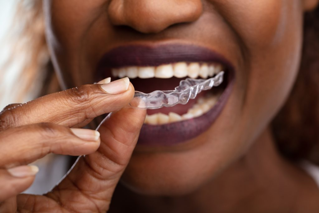 woman using a mouth guard for bruxism treatment