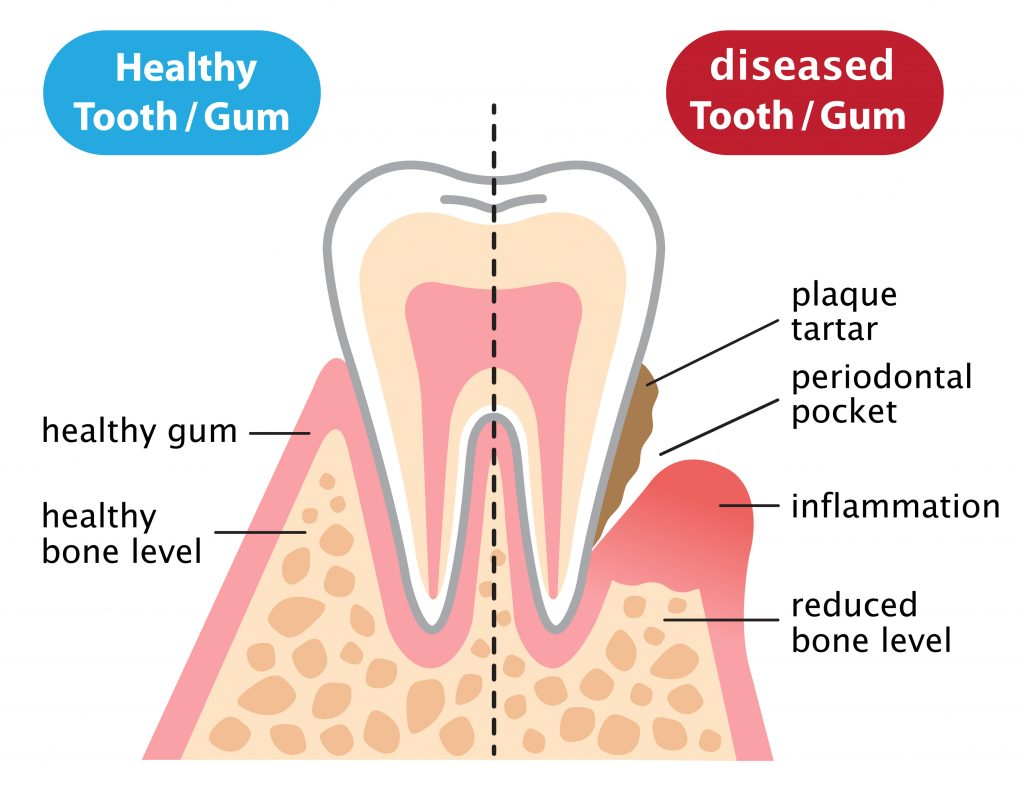 Healthy vs periodontal diseased tooth and gums illustration