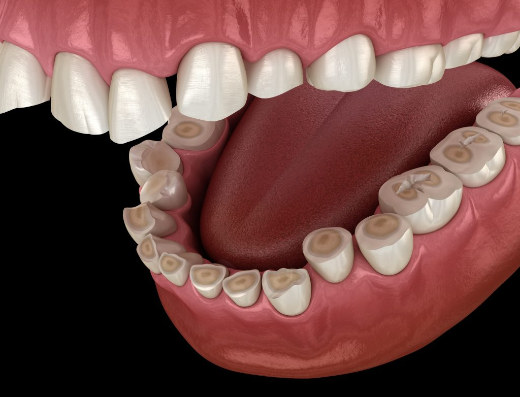 3D illustration of teeth grinding results