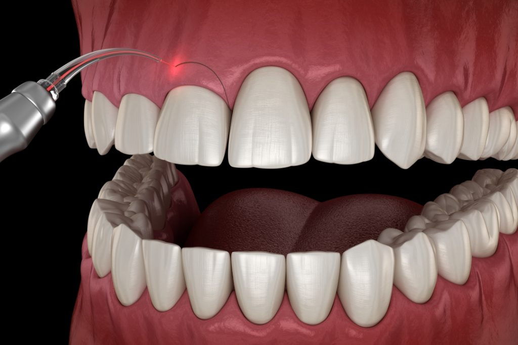 Gingivectomy procedure 3D illustration