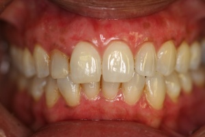 gum whitening after